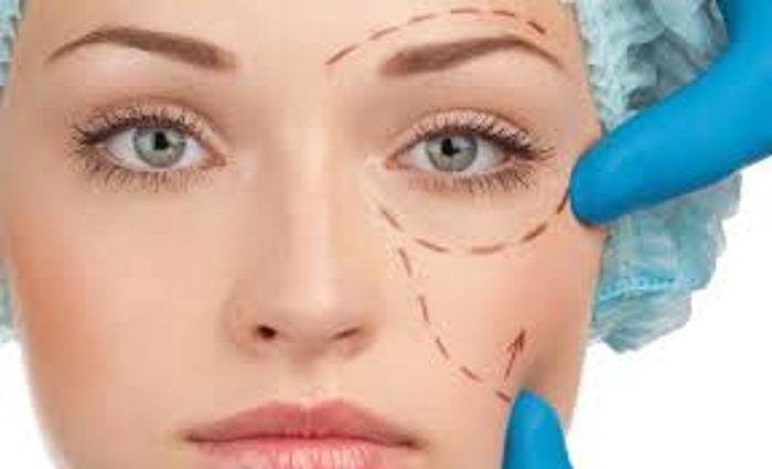 Göz Kapağı Ameliyatı