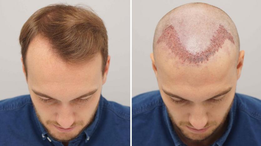Saç ekimi operasyonu sonrası