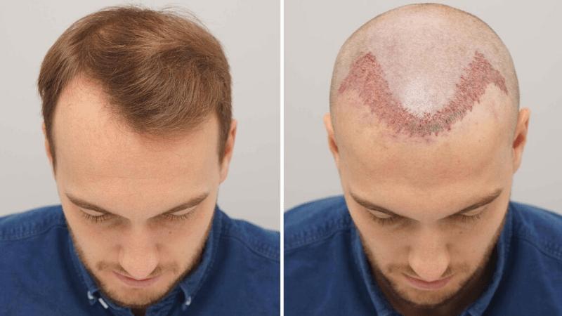 Saç ekimi öncesi dikkat edilmesi gerekenler