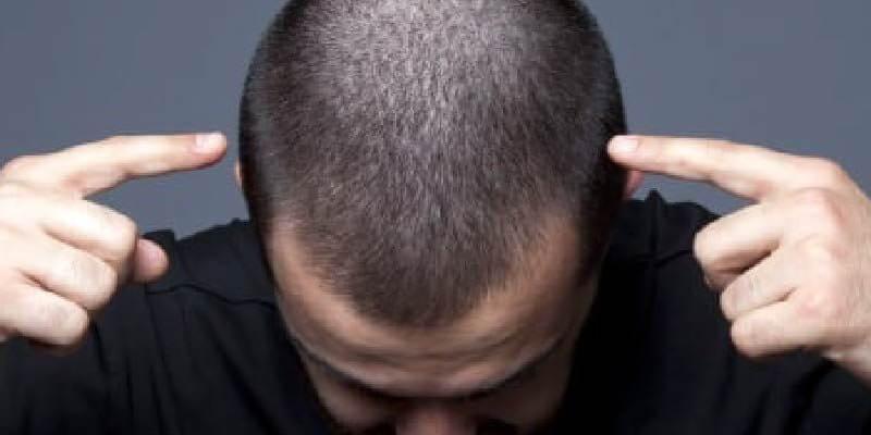 saç ekimi sonrası dikkat edilmesi gerekenler