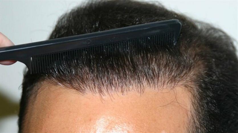 saç ekimi hakkında doğru bilinen yanlışlar