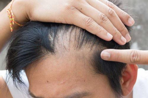 Saç Dökülmesi ve Saç Kaybının Tedavisi