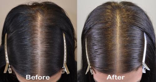 ACELL+PRP Saç Dökülmesi Tedavileri