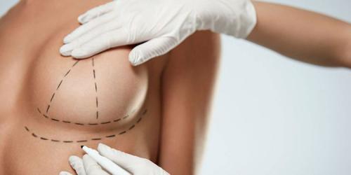 Göğüs Dikleştirme Ameliyatı Nedir? Nasıl Yapılır?