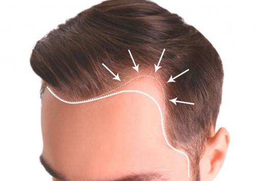 Fue Tekniği ile Saç Ekimi Nedir? Nasıl Yapılır?