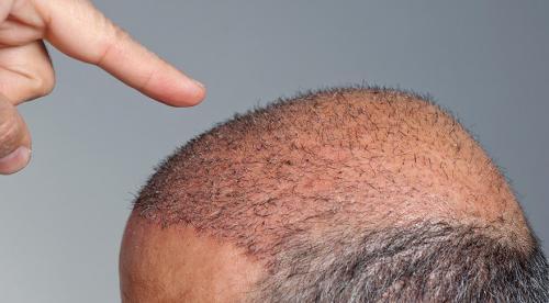 Saç Ekimi Sonrası Dikkat Edilmesi Gerekenler Nelerdir?